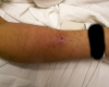 Vancomycin Infiltration Injury